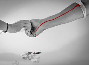 babeszjoza przez transfuzjękrwi