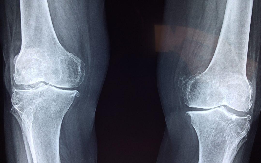 Bóle stawów – możliwe przyczyny