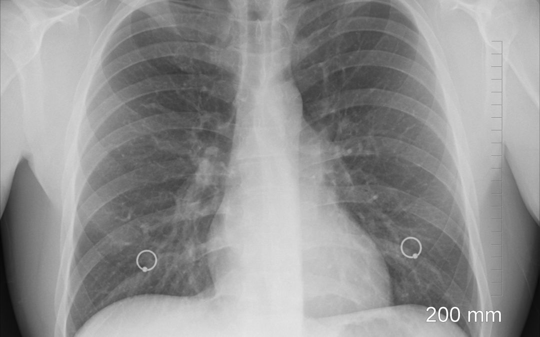Chlamydia pneumonia